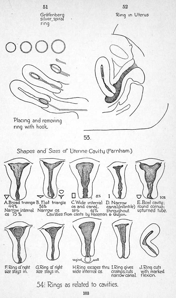 Iris Scissors Curved Sharp Sharp in addition 12 Week Ultrasound besides How Your Blood Pressure Changes With Age also 8155833 besides 2. on pressure medication chart